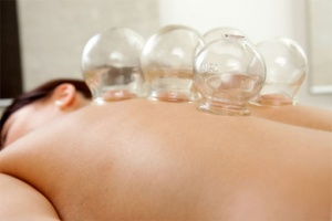 Oriental Cupping